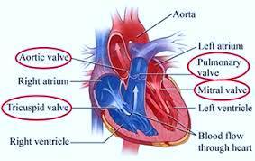 इंटरवेंशनल तकनीक से किया गंभीर हृदय रोगी में वाल्व प्रत्यारोपण